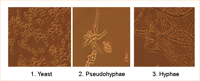 Candida albicans - Figure 1