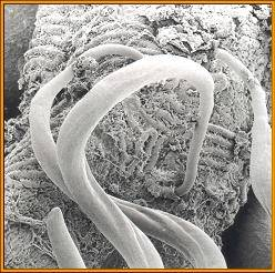 Intestinal nematode parasites - mechanisms of resistance - Figure 2
