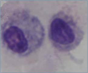 Macrophages - Figure 1