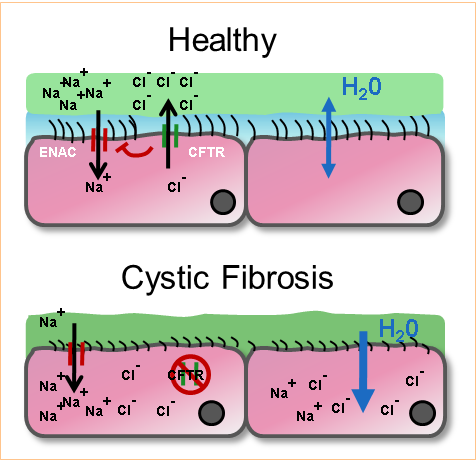 Microbial infection in cystic fibrosis - Figure 1