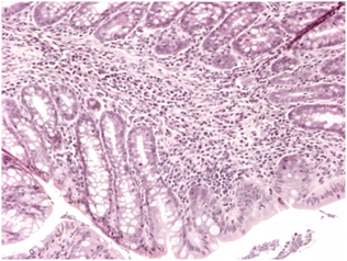 Ulcerative colitis and Trichuris infection - Figure 2a