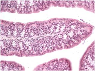 Ulcerative colitis and Trichuris infection - Figure 2b