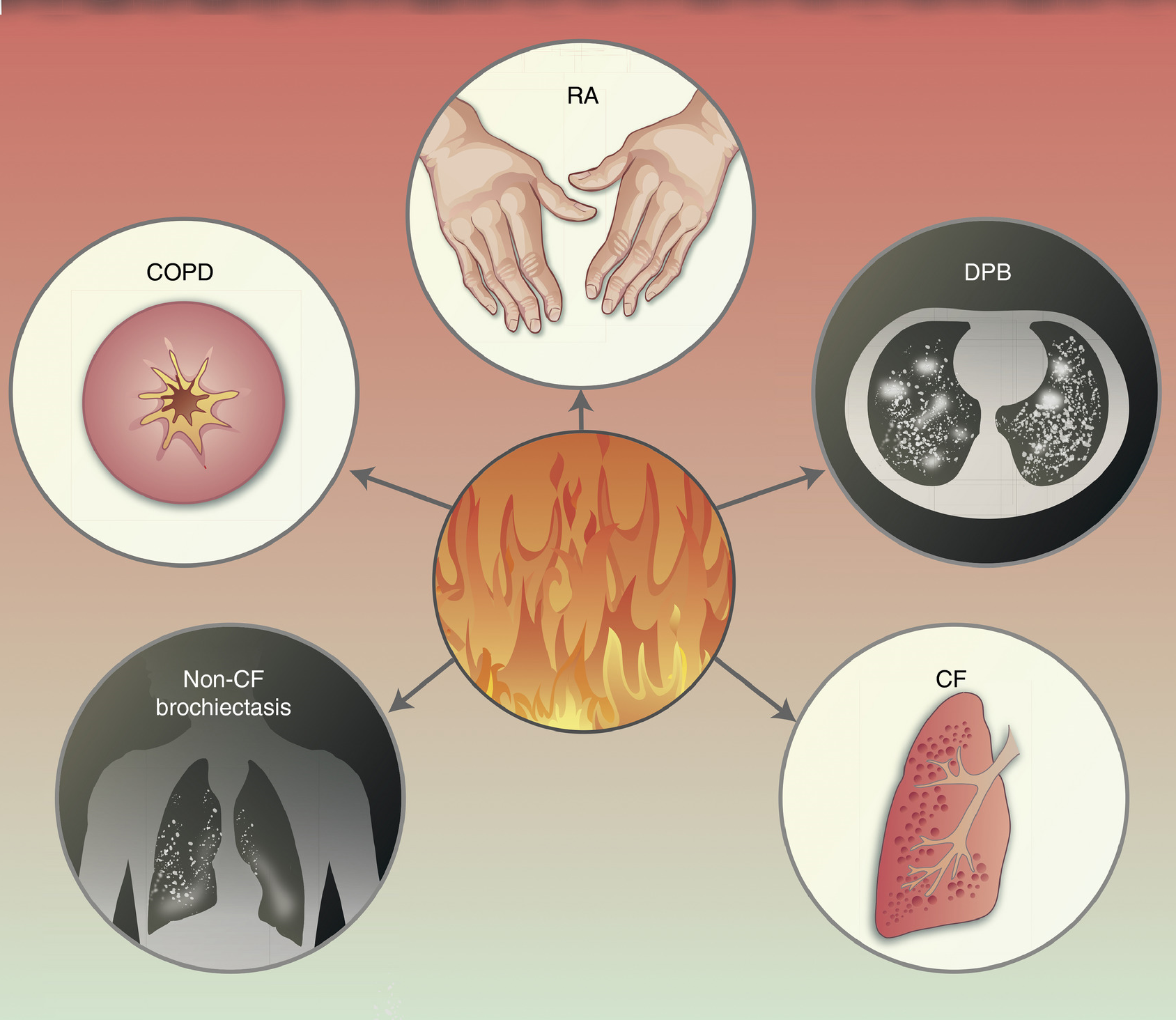 Figure from Autoinflammatory disease in the lung