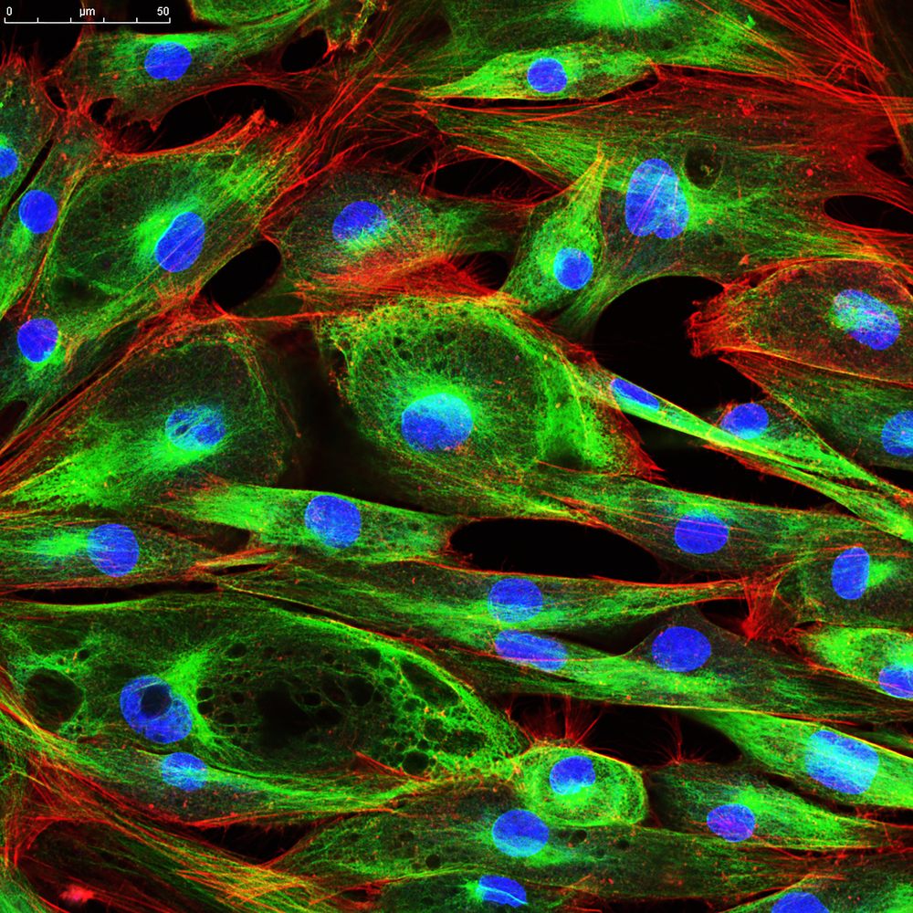 Laser confocal microscopy