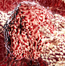 T lymphocytes attacking cancer cell